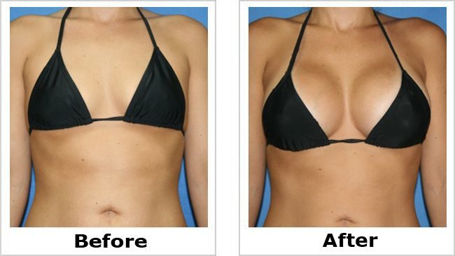 Plastic and cosmetic surgery in Belgrade, Serbia 2